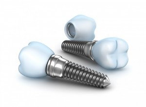 Dental implants, crown with pin isolated on white