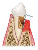 parodontite avancée