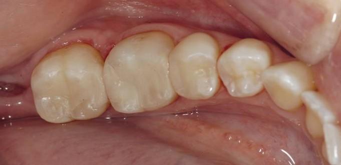 Obturation en composite (plombage blanc) - Al Dente - Centre ...