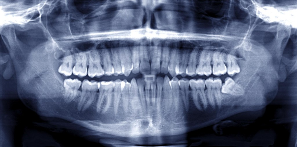 douleur aux dents de sagesse al dente centre de sant dentaire. Black Bedroom Furniture Sets. Home Design Ideas
