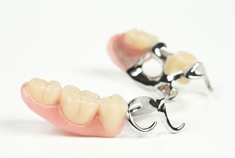Proth se amovible al dente centre de sant dentaire - Enlever tartre dents avec vinaigre blanc ...