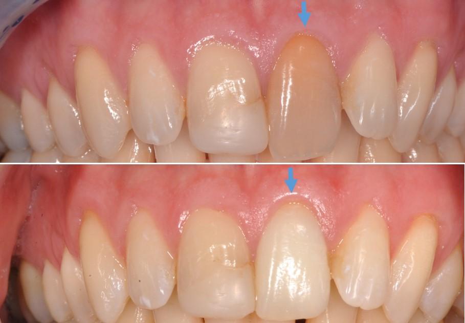 blanchiment des dents centre al dente dentiste st j r me. Black Bedroom Furniture Sets. Home Design Ideas